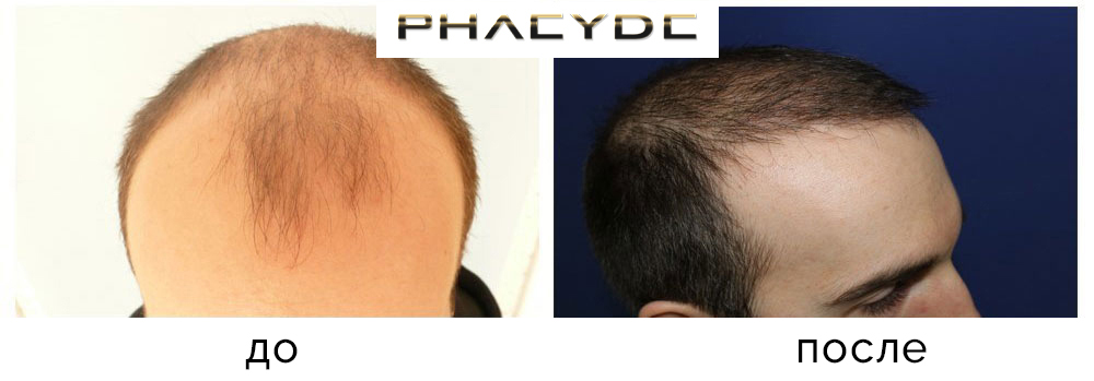 Пересадка донорских волос