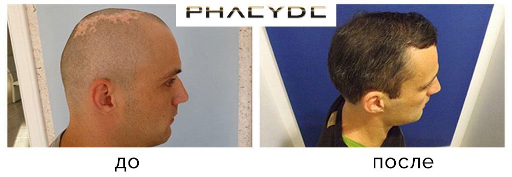 Пересадка волос в питере